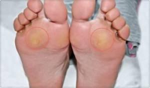 Metatarsalgia – choroby podeszwy stopy