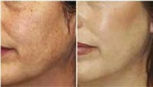 Przebarwienia skóry. Etiologia i leczenie za pomocą lasera