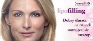 Lipofilling – reimplantacja tkanki tłuszczowej