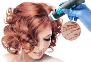 Analiza stanu skóry głowy w profesjonalnym zabiegu trychologicznym