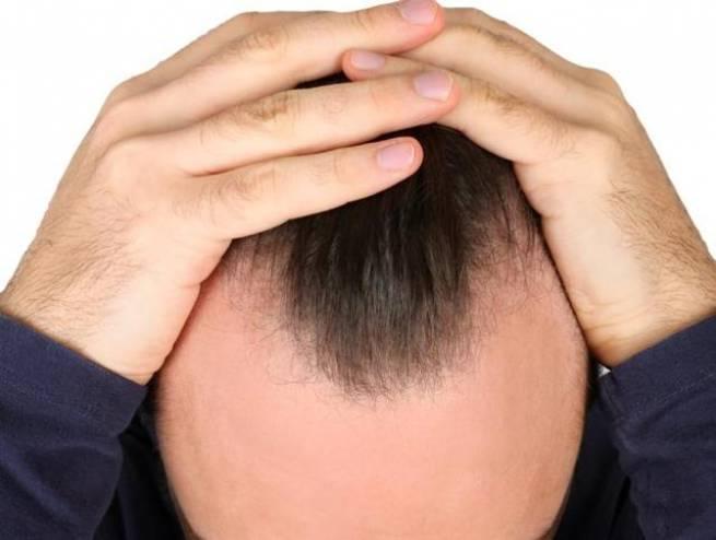 Cała prawda o łysieniu – fakty i mity