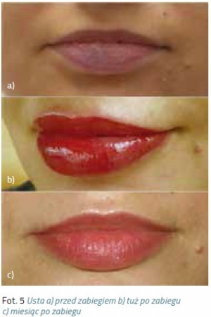Korekty w makijażu permanentnym