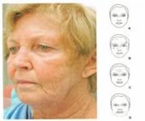 Accusculpt - nowa metoda modelowania twarzy i odmładzania zmienionych z wiekiem rysów