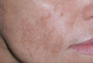 Substancje depigmentacyjne w walce z przebarwieniami